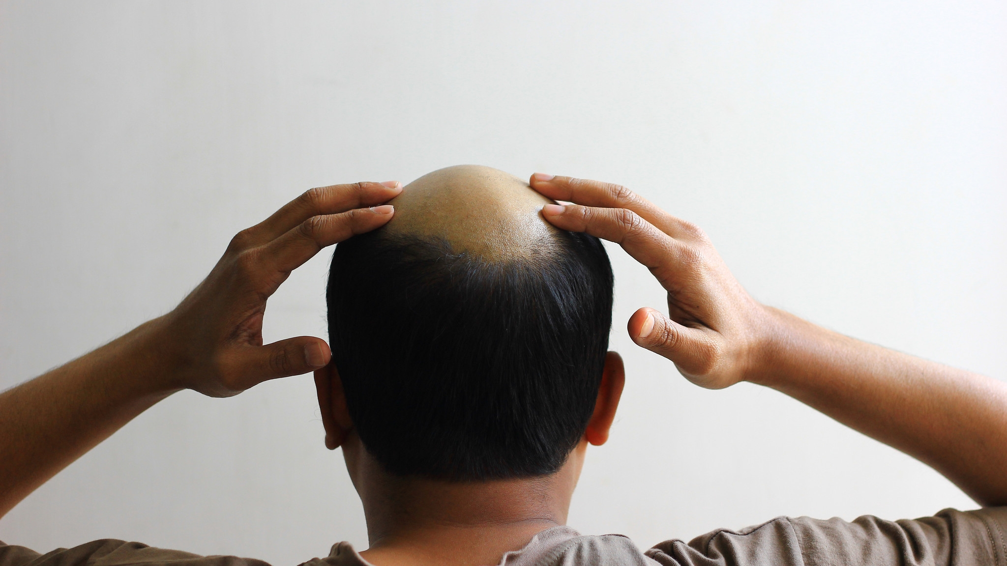 A baldness remedy may be on the way